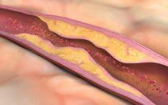 Aterosclerose – O que é, Causas, Sintomas e Tratamentos!