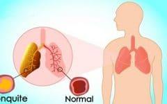 Os 10 Principais Sintomas de Bronquite!