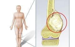 Os 5 Principais Sintomas do Câncer Ósseo!