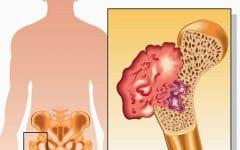 Câncer ósseo– O que é, Sintomas e Tratamentos