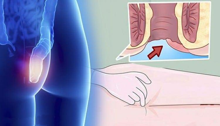 Os 5 Principais Sintomas do Câncer Anal