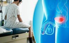 Os 6 Principiais Sintomas de Câncer de Bexiga!