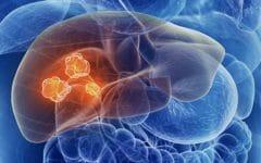 Câncer de Fígado – O que é, Sintomas e Tratamentos