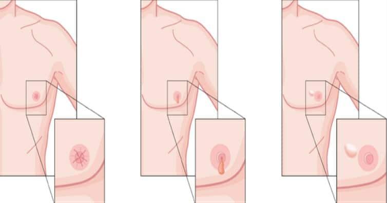 Os 6 Principais Sintomas de Câncer de Mama em Homens