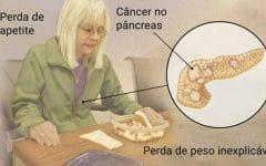 Os 8 PrincipaisSintomas de Câncer de Pâncreas!