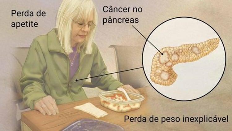 Os 8 PrincipaisSintomas de Câncer de Pâncreas