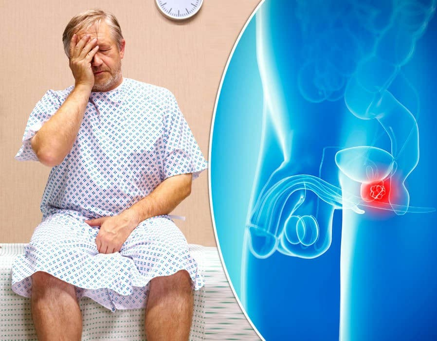 Os 6 Principais Sintomas doCâncer de Próstata