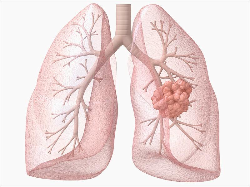 Câncer de Pulmão