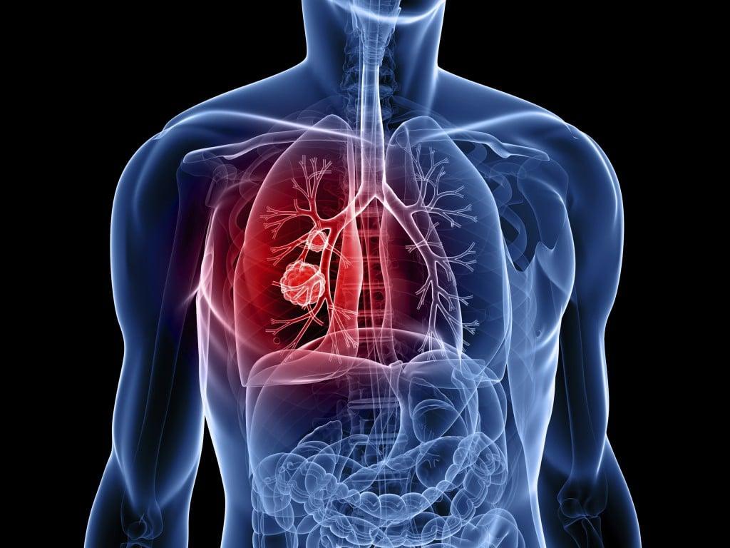 Os 15 Principais Sintomas deCâncer de Pulmão