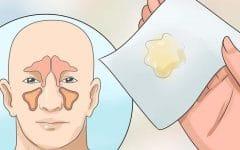 Catarro – O que é, Causa e Tratamentos