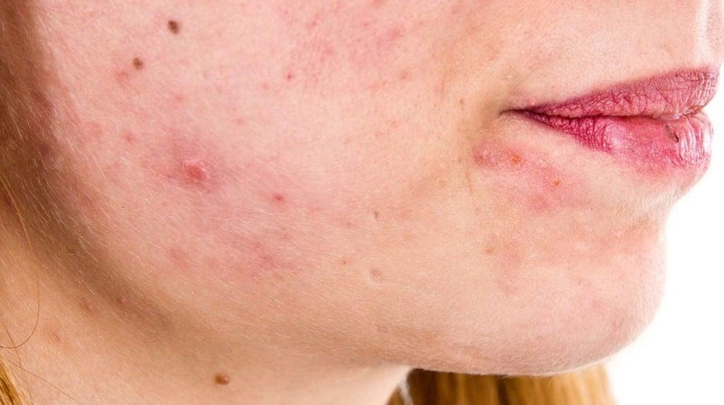 Dermatite Seborreica