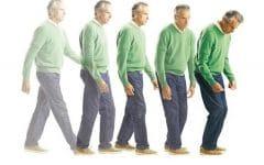 Doença de Parkinson – O que é, Sintomas e Tratamentos!
