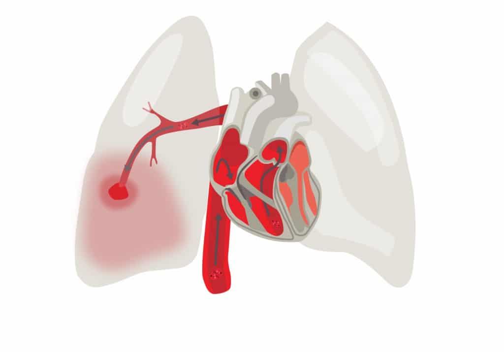 As 4 Principais Causas da Embolia Pulmonar