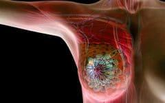 Os 10 Fatores de Risco do Câncer de Mama