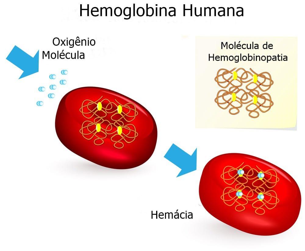 Hemoglobinopatia C