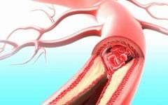 Hipercolesterolemia – O que é, Causas e Tratamentos