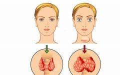 Hipertireoidismo –O que é, Sintomas e Tratamentos!