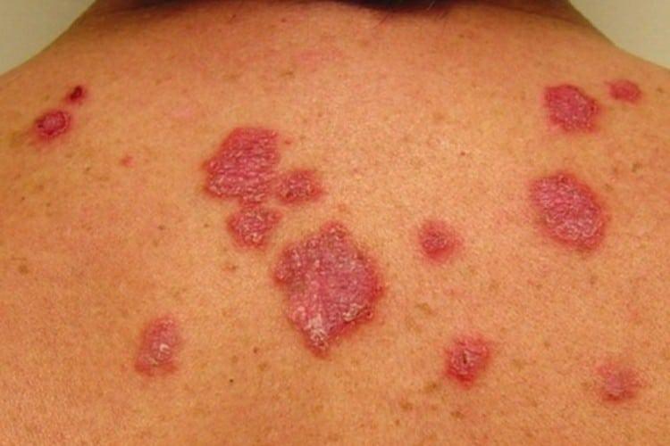 Como a Lepra e transmitida