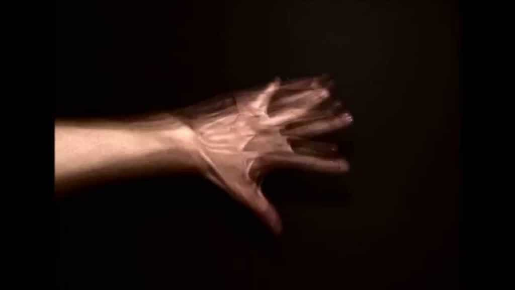 Síndrome da Mão Estranha