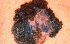 Os 9 Principais Sintomas de Melanoma!