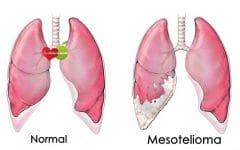 Mesotelioma – O que é, Sintomas e Tratamentos