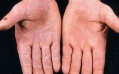 Micose – O que é, Causas, Sintomas e Tratamentos
