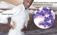 Mieloma Múltiplo – O que é, Sintomas e Tratamentos