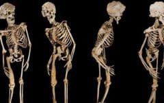 Osteopetrose – O que é, Causas e Tratamentos