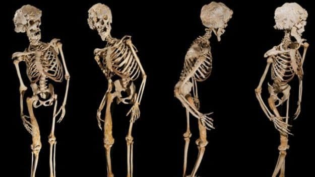 Osteopetrose