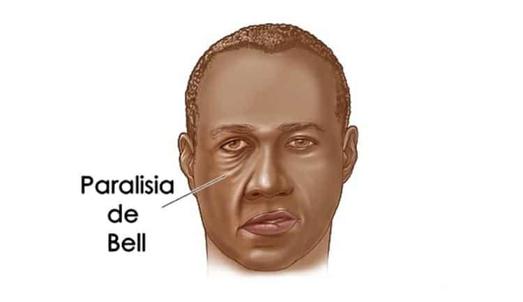 Paralisia de Bell