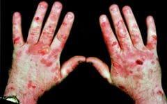 Porfíria Cutânea – O que é, Causas e Tratamentos