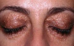 Siringoma – O que é, Causas, Sintomas e Tratamentos