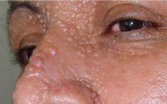 Tricoepitelioma – O que é, Causas e Tratamentos