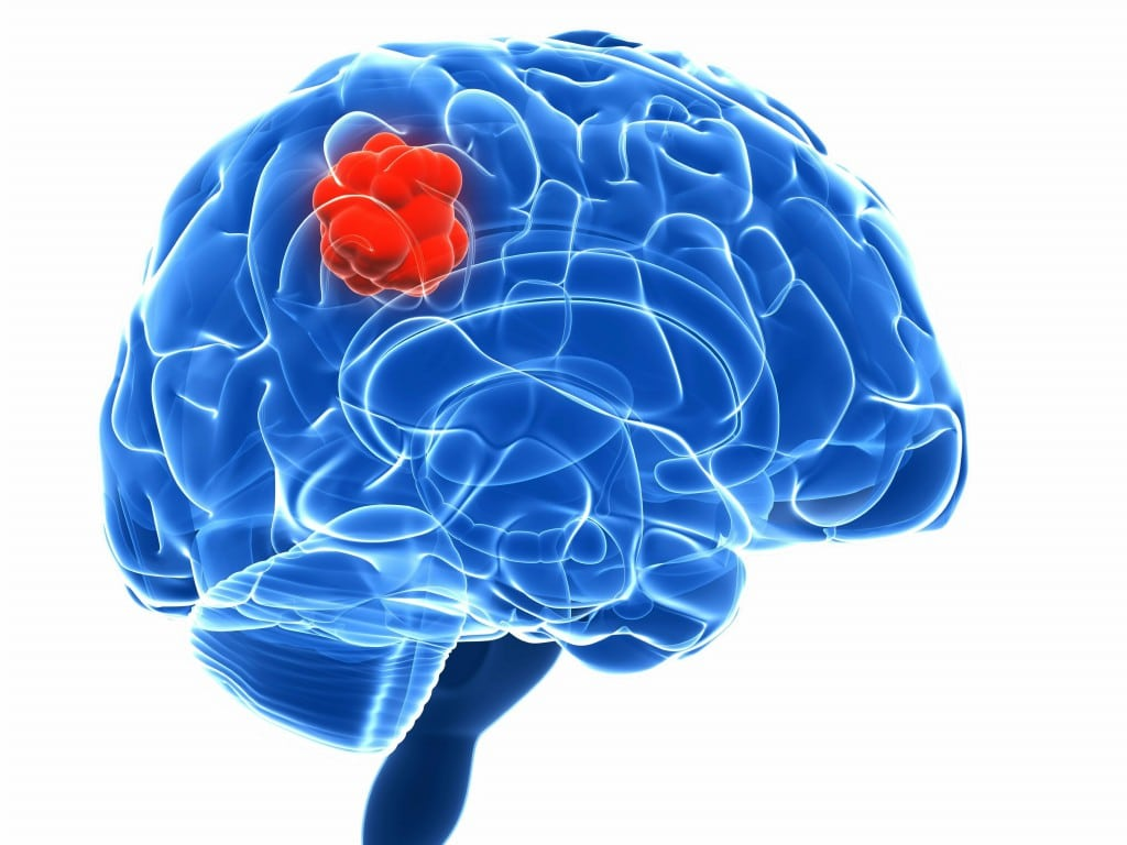 Os 8 Tipos de Tumores Cerebrais Primários