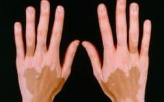 Os 6 Principais Sintomas do Vitiligo!
