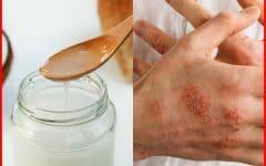 Os 12 Remédios Caseiros Para Tratar o Câncer de Pele