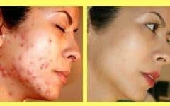 Os 10 Remédios Caseiros Para Eliminar Cicatrizes de Acne