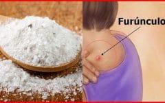 Como Eliminar Furúnculos Com Sal de Epsom
