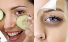 Como Eliminar os Círculos Escuros Sob os Olhos Com Pepino