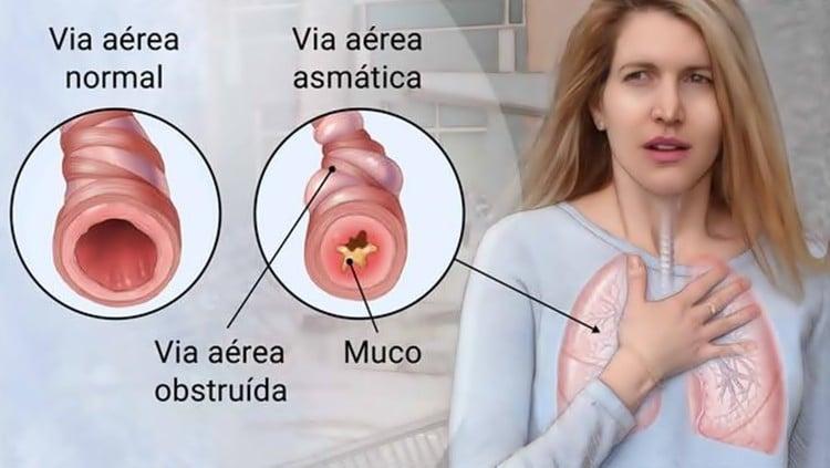 Resultado de imagem para asma