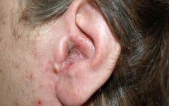 Como Tratar Infecções de Ouvido em Poucos Dias