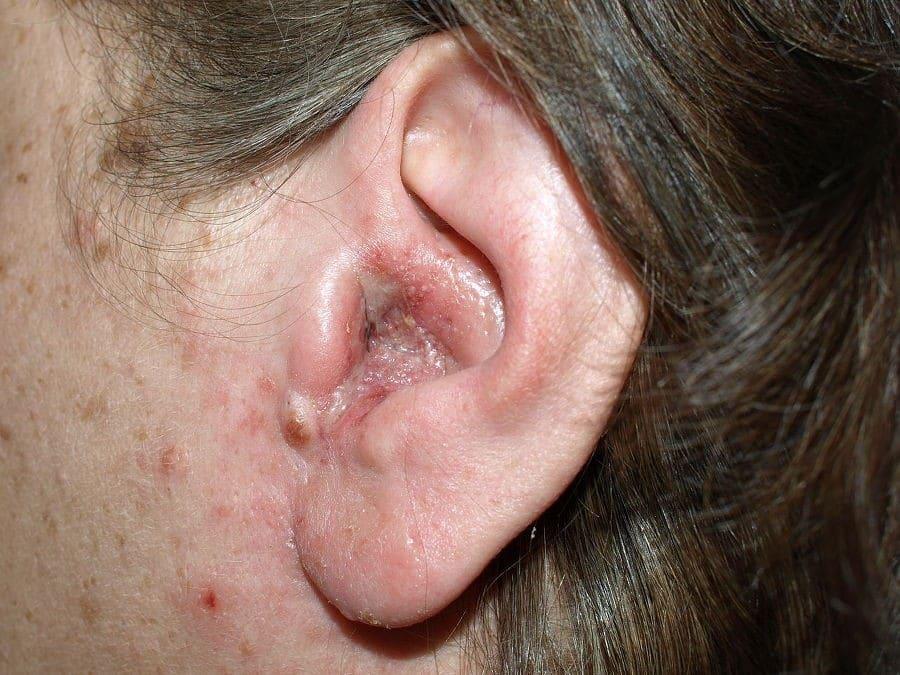 Infecçoes de Ouvido