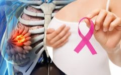 Os 10 Alimentos que Ajudam a Prevenir o Câncer de Mama
