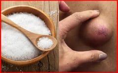 Os 7 Remédios Caseiros Para Remover Cisto Epidermóides