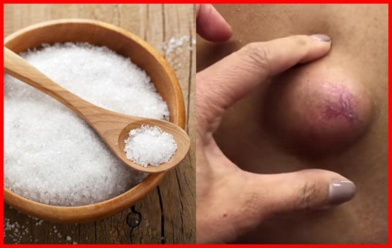 Remedios Caseiros Para Remover Cisto Epidermoides