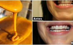 As 10 Dicas Para Clarear os Dentes em Casa