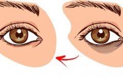 Como Eliminar os Círculos Escuros Sob os Olhos em 1 dia!