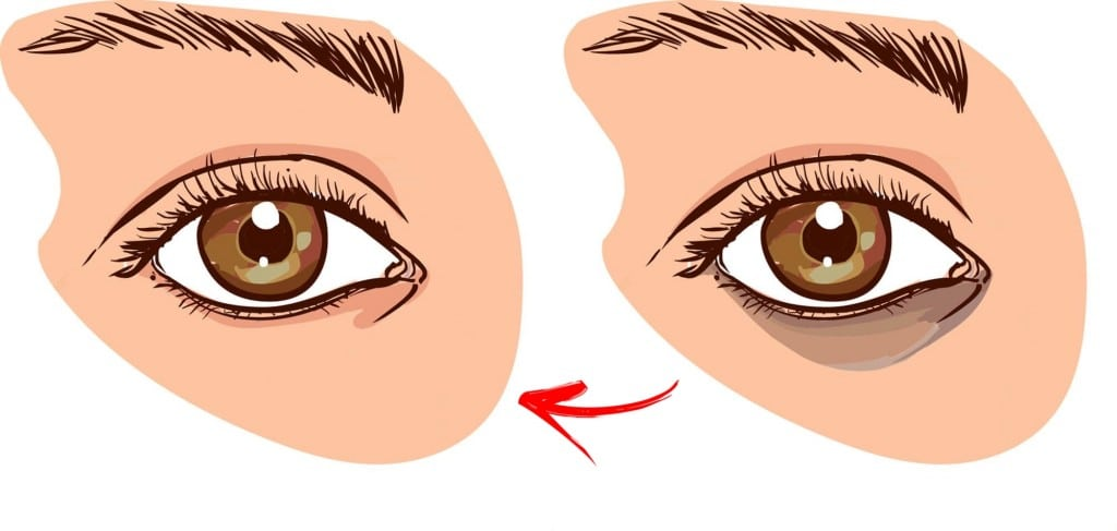 Círculos Escuros Sob os Olhos