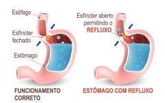 Como se Livrar do Refluxo sem usar Medicamentos
