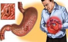 Como Tratar a Gastrite em Apenas 7 Dias!